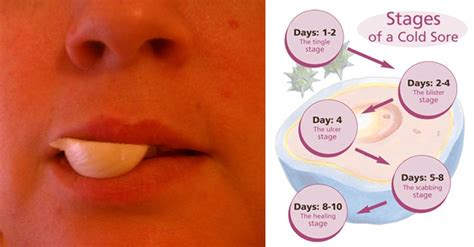 how to relieve a fever blister thats inside the nose ehow 1000 ideas about cold sore cure on pinterest herpes