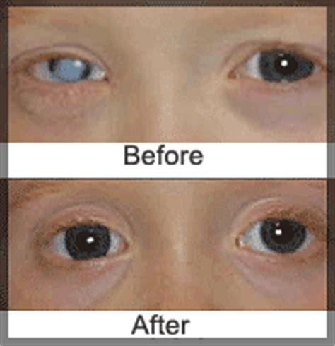 http://eyesee eyetalk.blogspot.com: 7.9 wild crazy eyes