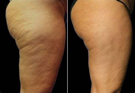 lipo section before and after photos after cellusmooth treatment
