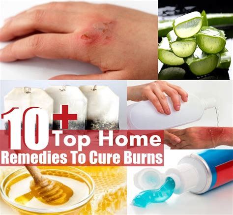 home remedies to cure burns