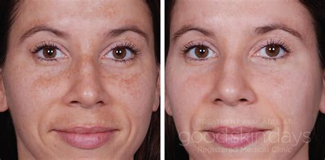 before and after pictures of pigmentation on skin before after good skin days