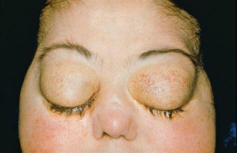cushing syndrome belgium   case reports