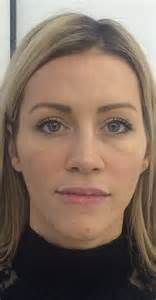 picsof women in their thirties would you have a puppet facelift to beat wrinkles