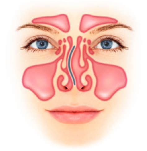 deviated septum diagram diagram of the sinus pages diagram of nose elsavadorla