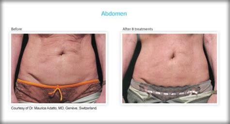 surgical fat removal skin tightening allentown
