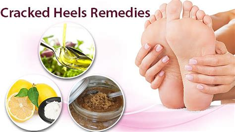 Foot Care Tips To Avoid Cracked Heels by Cracked Heels Home Remedy Cure Cracked Fast