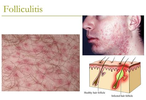 folliculitis causes symptoms and treatment