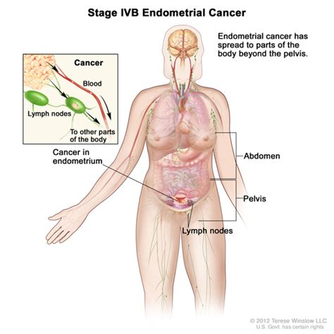 Cdr Fortos 10 S By Farmaku stages of endometrial cancer navigating care