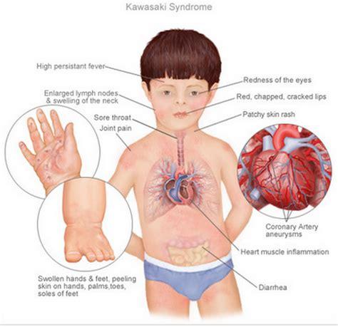 Treatment Of Kawasaki Disease by Kawasaki Disease Pictures Symptoms Causes Treatment