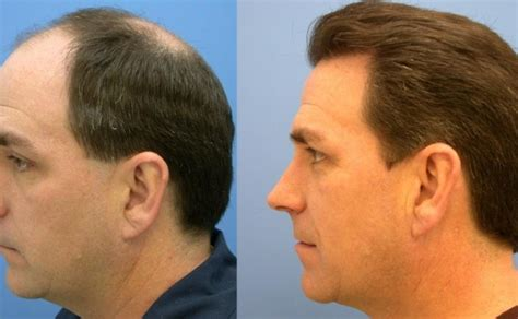 30000 hair graft cost hair transplant cost hairstylevill