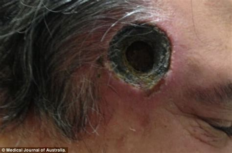 painful lump above c section incision black salve ointment leaves inch wide hole in aussie man s