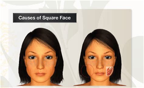 best curt for fat square face liposuction or face exercises to make a round square