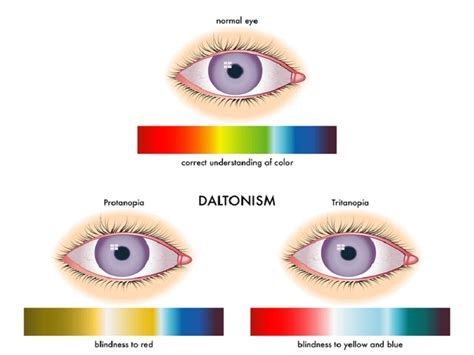 Causes Of Green Color Blindness information about color blindness with major causes and