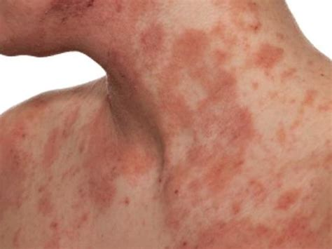 the hives anaphylaxis hives www pixshark com images galleries