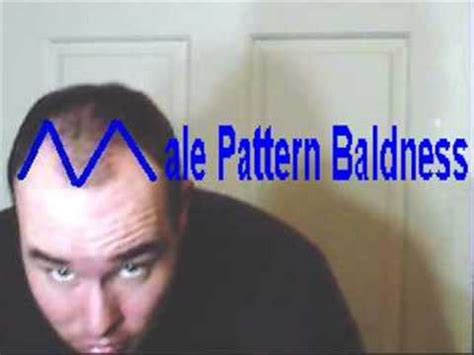 Male Pattern Baldness Youtube | male pattern baldness rap youtube