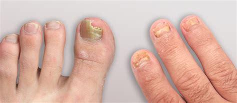 Obat Jamur Kuku 9 Tips Menghilangkan Jamur Kuku Dengan Garam