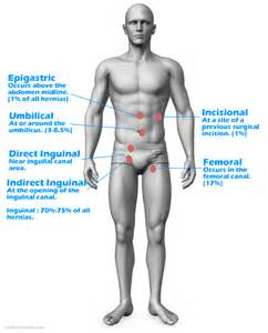 Hernias can occur all over the front and side abdominal area and use