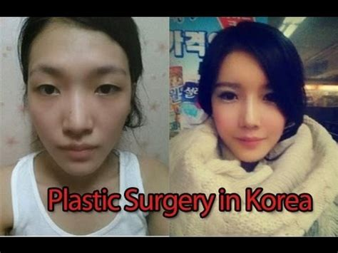 why koreans get so much plastic surgery youtube