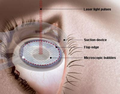 advantages of laser eye treatment | insight vision center