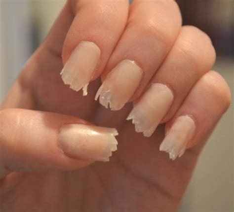 cracked nail 6 things your fingernails can tell you about your health bollywoodshaadis
