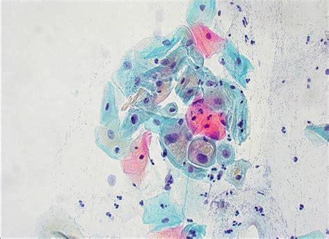 metaplasia pap test atipias en c 233 lulas escamosas de significado incierto