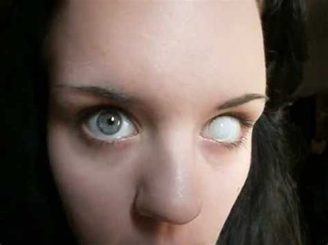 kontaktlinse einsetzen youtube