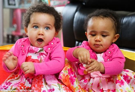 when do babies get their skin color identical with different skin colour born in