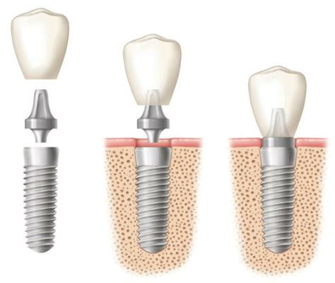 titanium teeth ceramic dental implants archives atlanta dental implants