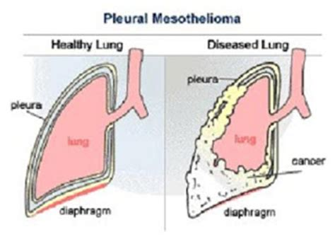 Pleural Mesothelioma Stages 5 by An Arkies Musings I Fought Fears So My Could Fight