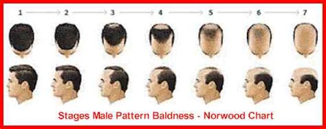 is hair loss pattern related to body mass index hair growth baldness treatment for black men stop your