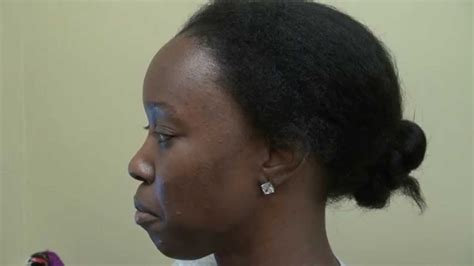 hair transplant for black women black woman hair loss transplant before and after dr diep