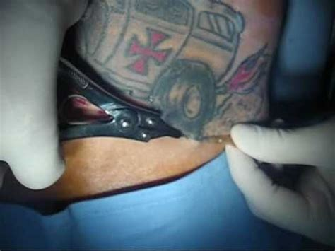 dermasal tattoo removal excision removal