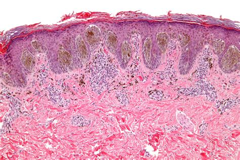 Pigmented Spindle Cell Nevus Of Reed Pathology Outlines by Spitz Nevus Reed