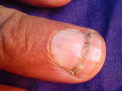 beaus lines how to recognize a beau line fingernail the things your nails tell about your health ethnic