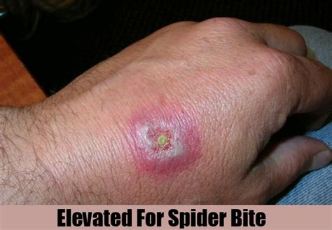 how to treat a spider bite home remedies for spider