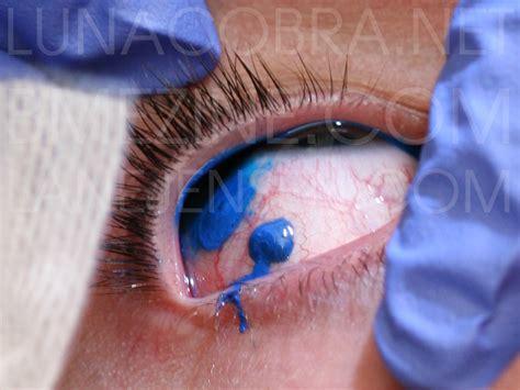 eyeball tattoo procedure three blind mice bme tattoo piercing and body