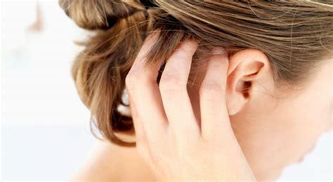 prurito dopo doccia le cause prurito alla testa aluseb