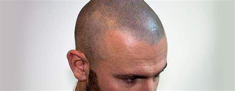 scalp micropigmentation results before and after