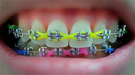 Rubber Bands For Braces Colors by How To Choose Braces Colors Braces Or Invisalign