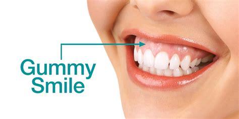 gummy smile dr jack haney knoxville