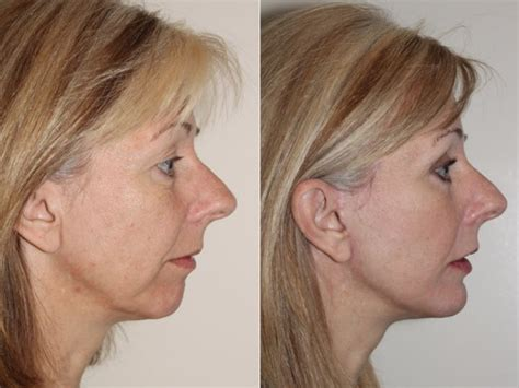 face lifts for women over 50 facelifts for 50 facelift a gift when turning 50 cbs