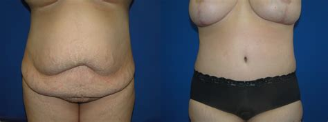 c section tummy tuck before after tummy tuck before after dr farbod esmailian