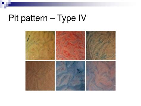 pattern classification duda lecture slides ppt pit pattern classification in colonoscopy powerpoint