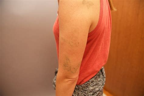 tattoo removal after 3 sessions laser removal before and after the untattoo