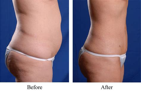 Detox After Smart Lipo by Smart Lipo Luxe Laser Center