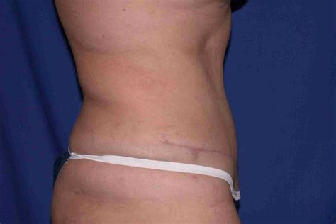mini tummy tuck with c section gallery abdominoplasty