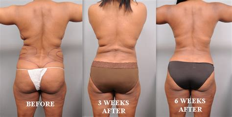 lipo light vs coolsculpting liposuction today in may