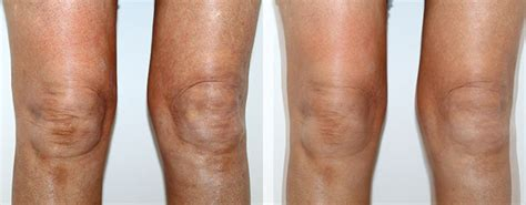 knee lift surgery before and after hollywood s knee anxiety ironing out those quot kninkles