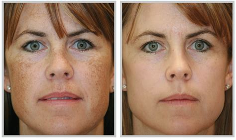 melasma treatments that work expert tips and advice