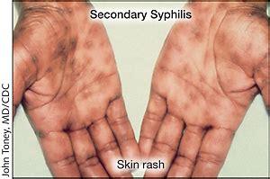 syphilis rash on hands syphilis infectious diseases jama jama network